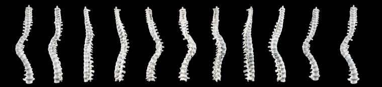 A series of images show the curve of the spine of King Richard III. Researchers used CT scans to analyze how bad the curvature was.