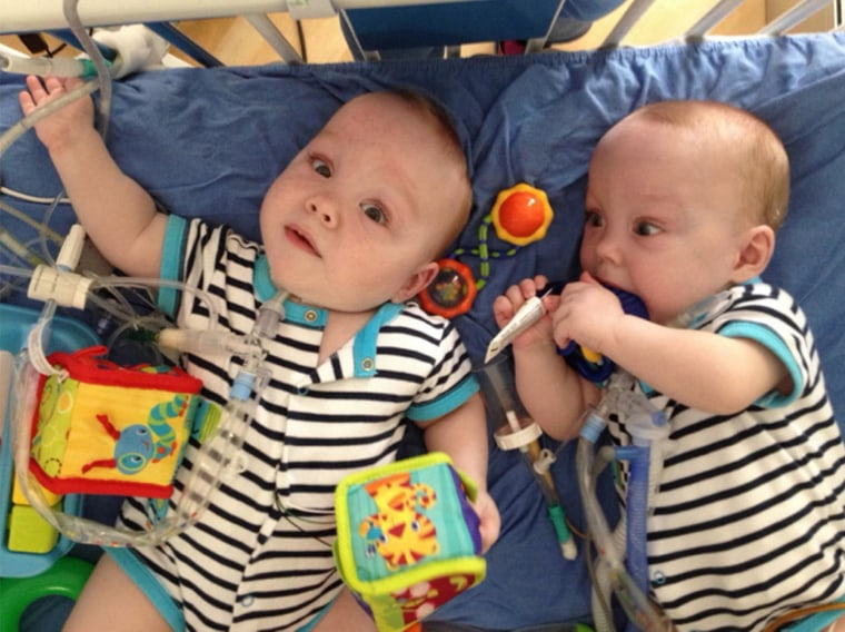 Medical Milestone No Longer Conjoined Twins Begin Journey Home
