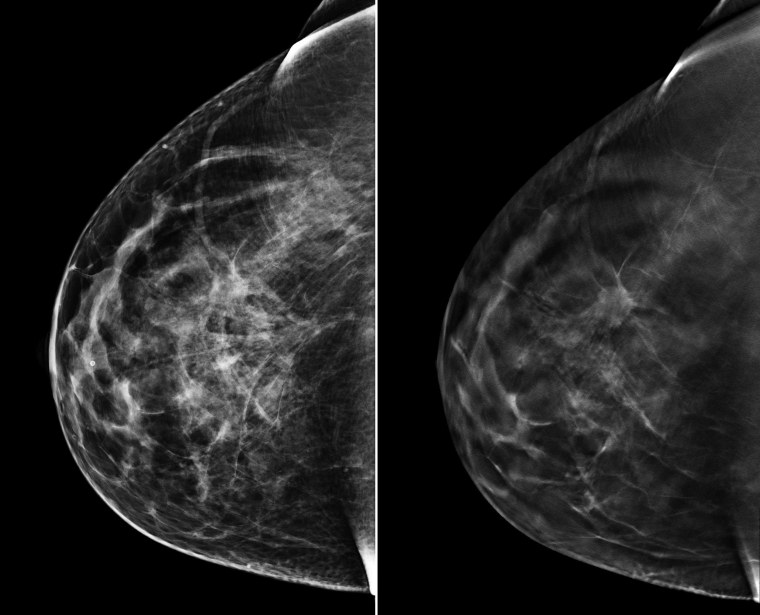 On the left is a traditional 2D mammogram. On the right is 3D tomosynthesis.