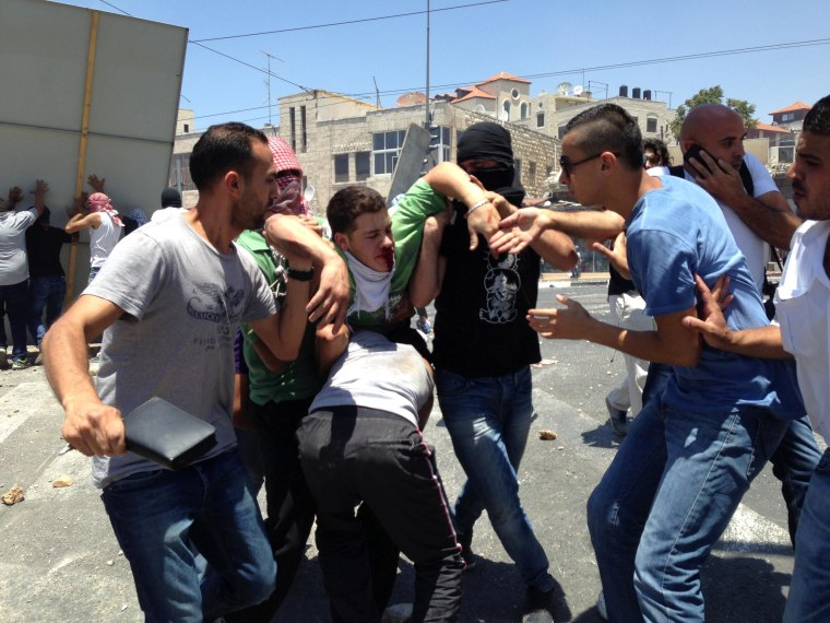 A bloodied Palestinian teenager is ferried away after being struck in the face by a rubber bullet fired by Israeli soldiers in Shufat, East Jerusalem, on July 2, 2014.