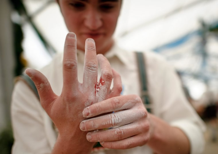 Image: A participant looks at his bleeding hand during the German Finger-Wrestle Championship