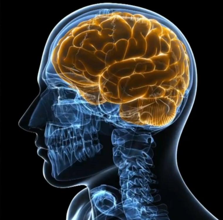 Image: A brain scan