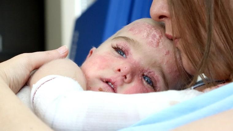Healing 'Butterfly Children': Treatment Brings New Hope