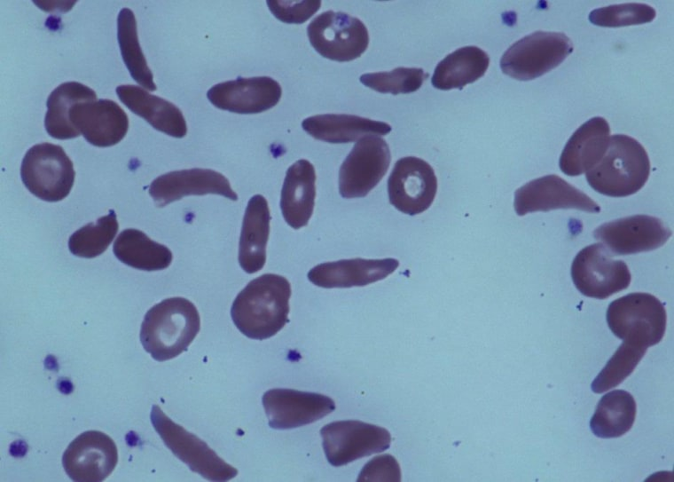 Image: Red blood cells in a patient with sickle cell disease