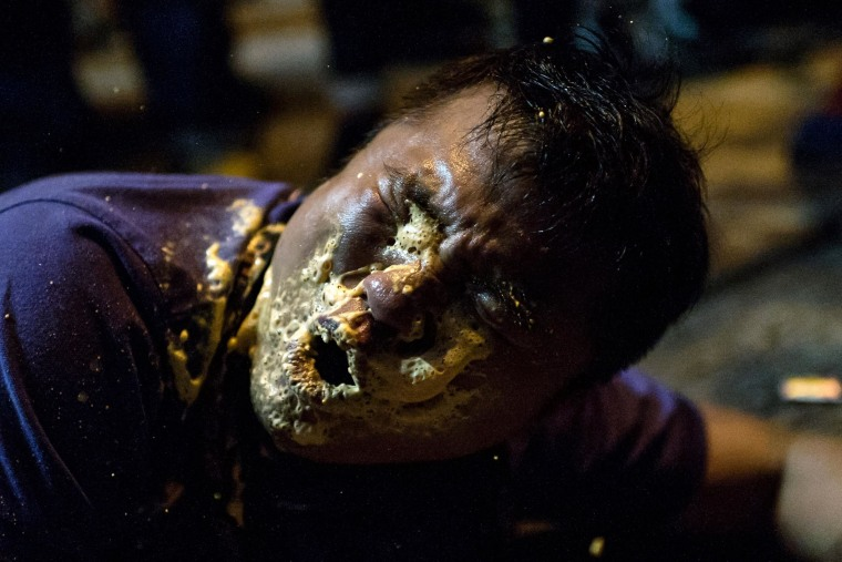 Image: A local Hong Kong journalist collapses in agony after being hit in the face with pepper spray