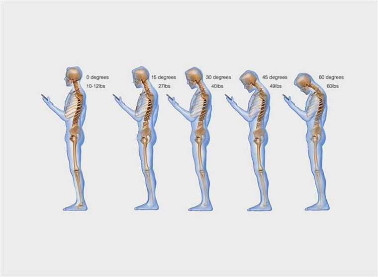 Image: The weight seen by the spine increases when bending the neck at varying degrees, Dr. Ken Hansraj writes in his study