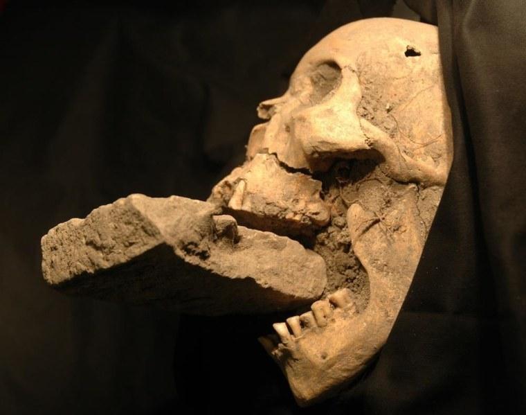 "Image: The skull of the ""Vampire of Venice"""