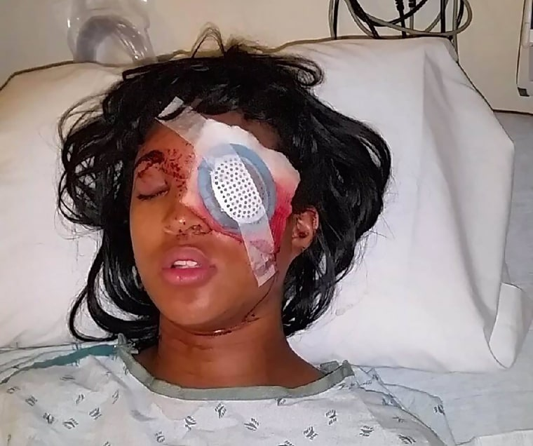 Dornella Conner, 24, was injured Tuesday after police in St. Louis shot her in the face with a bean bag round, blinding her in her left eye.