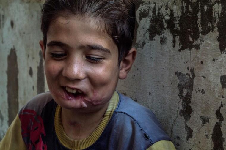 Wael's smile after having metal jaw transplant surgery