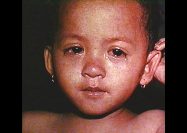 Child with measles. CDC/ Barbara Rice
