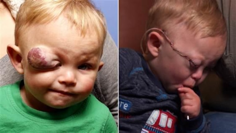 Colby Ramos-Francis was at risk for blindness from a giant tumor on his eyelid (R). This week, a group of plastic surgeons removed the tumor (L) and saved the toddler's vision, at no cost.