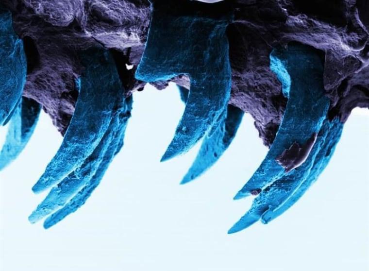 Image: Limpet teeth