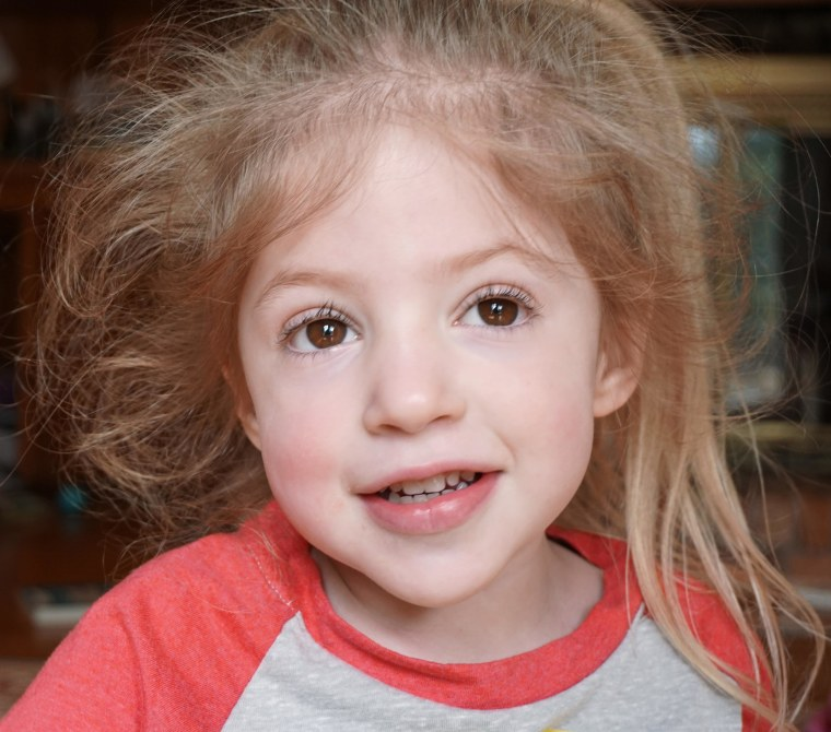 Eliza O'Neill has Sanfilippo syndrome, which occurs in one in 70,000 births.