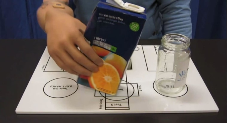 Image: Recipient of bionic hand pours a glass of juice