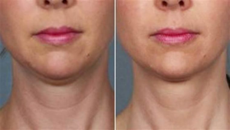 An FDA advisory panel has recommended approval of a new, fat-melting drug for double chins
