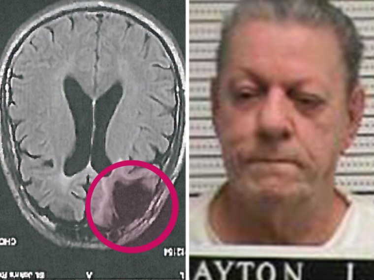 Cecil Clayton, who suffered brain damage in a sawmill accident that required one-fifth of his frontal lobe to be removed and is scheduled for execution in Missouri on March 17.