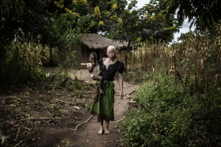Image: MALAWI-ALBINOS-FEATURE