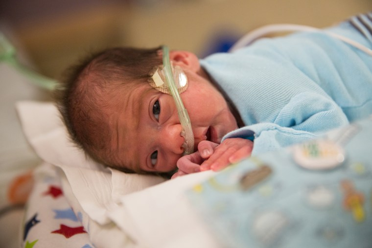 Angel Perez's miracle birth comes 54 days after his mother suffered a catastrophic catastrophic hemorrhage.