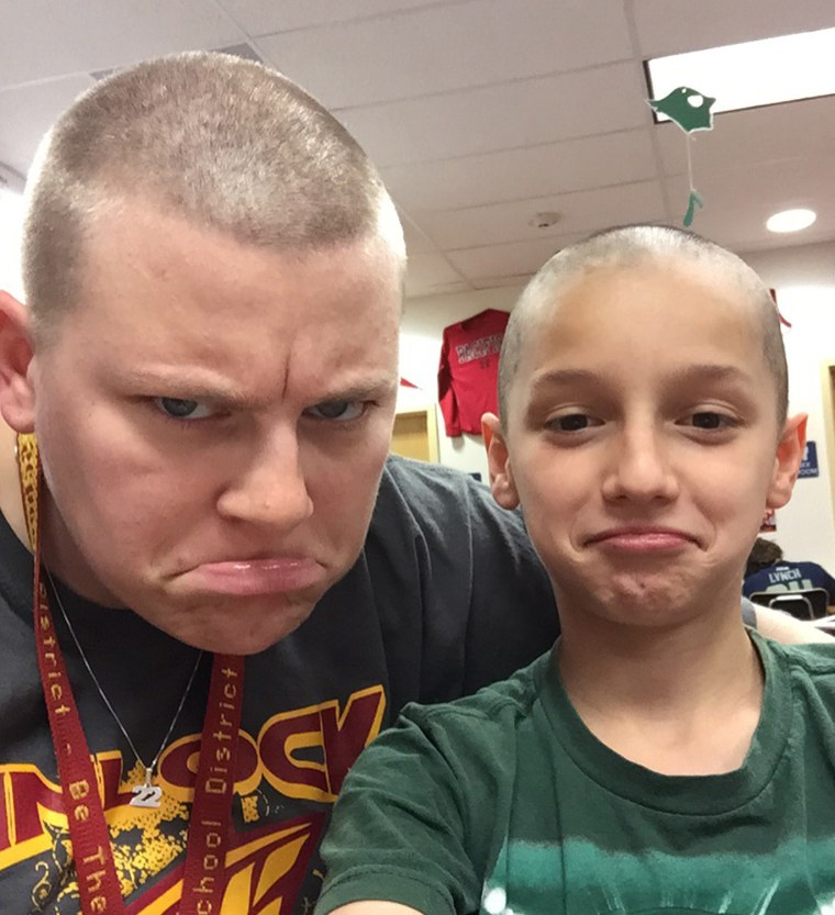 Teacher shaves head to support student