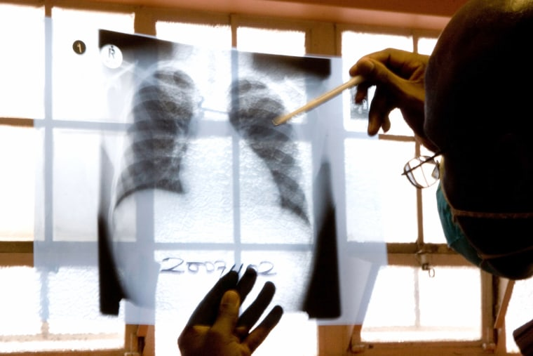 Image: a doctor examines chest X-rays at a tuberculosis clinic