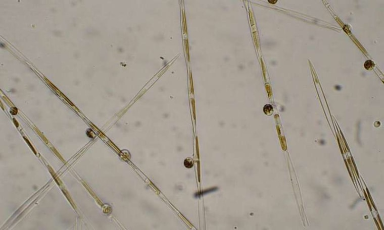 Image: Close-up of the diatom that produces the marine toxin domoic acid