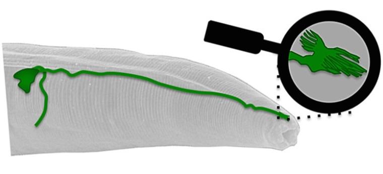 Worm Brain Yields Secret to How Animals Sense Earth's Magnetic Field