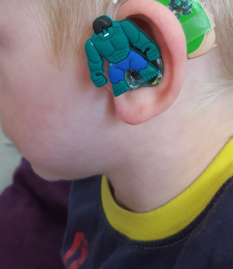 """Sarah Ivermee, the creator of Lugs hearing-aid decals, is the mother of Freddie Ivermee, a boy born whose childhood battle with congenital cytomegalovirus """"left him profoundly deaf in one ear and moderately to severely deaf in the other,"""" according to the business' website."""