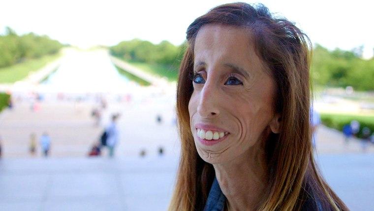 Bullying victim turned global motivational speaker, Lizzie Velasquez