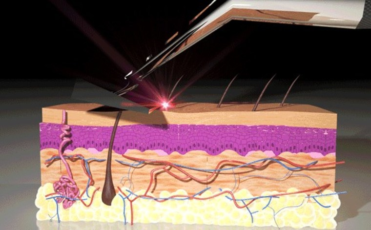 Still from an animation showing how the Skarp zaps hairs it comes in contact with.