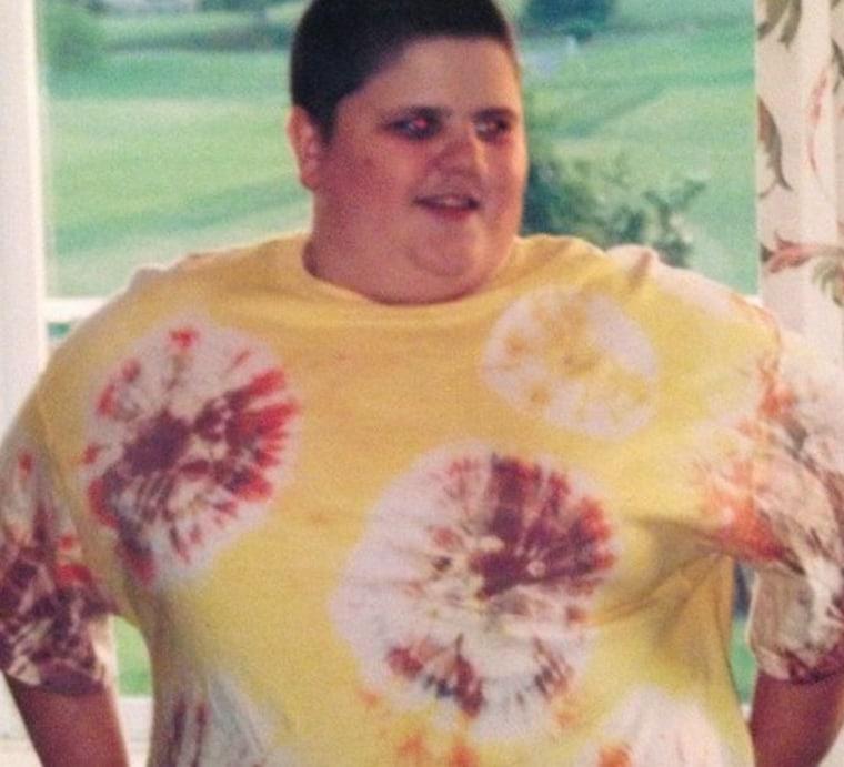 Austin Shifflett lost 166 pounds in 1 year