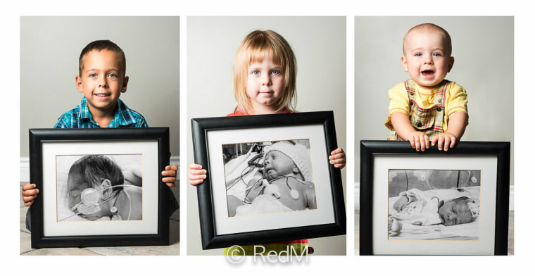 Premature siblings are shown in photographer's portrait as happy and healthy