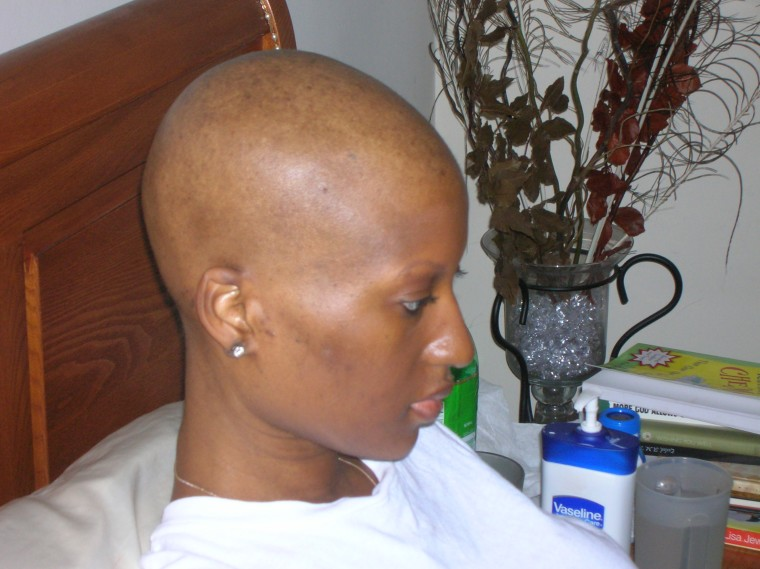 Maimah Karmo lost her hair during chemotherapy.