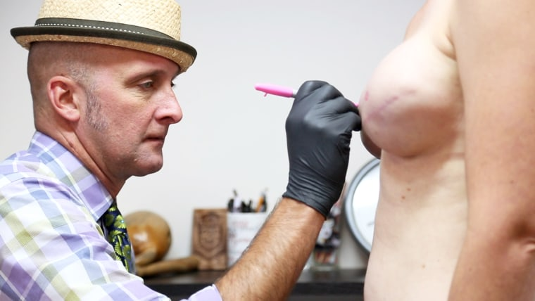 Vinnie Myers sketches a rough circle on a reconstructed breast before tattooing.