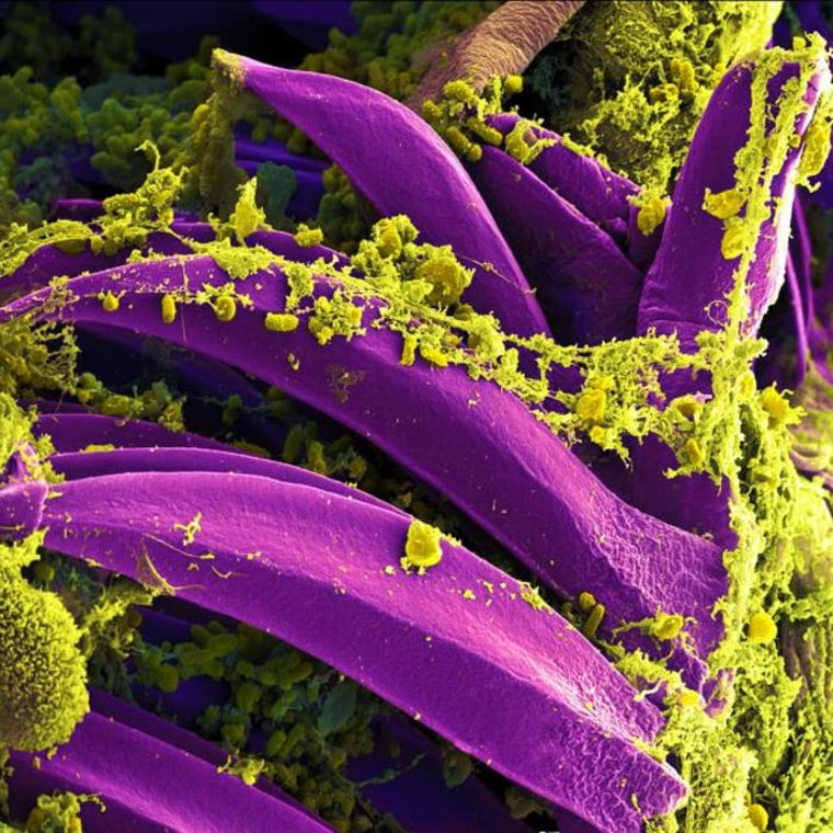 Image: Plague causing Yersinia pestis bacteria