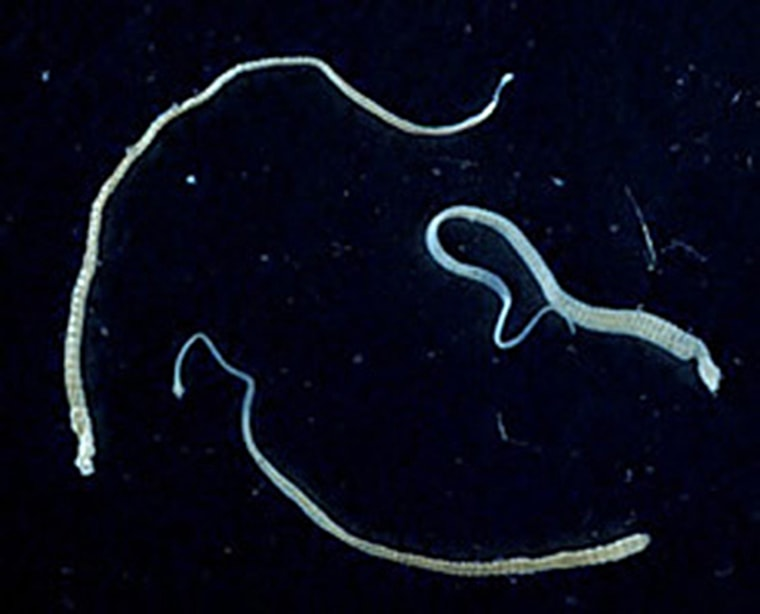 A Tapeworm With Cancer Gave Its Tumors to Someone