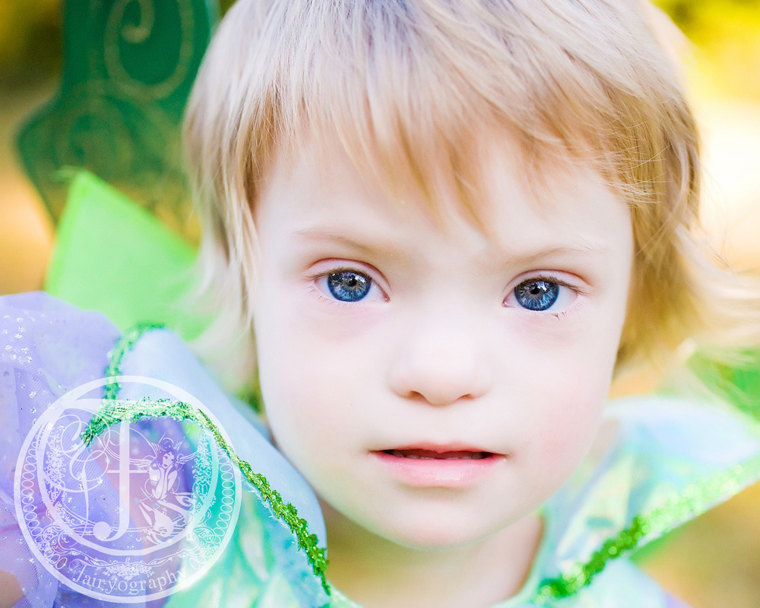8-year-old Chloe Akridge was born with down syndrome and was diagnosed with AML leukemia at age 2. Chloe has been in remission for 5 years.