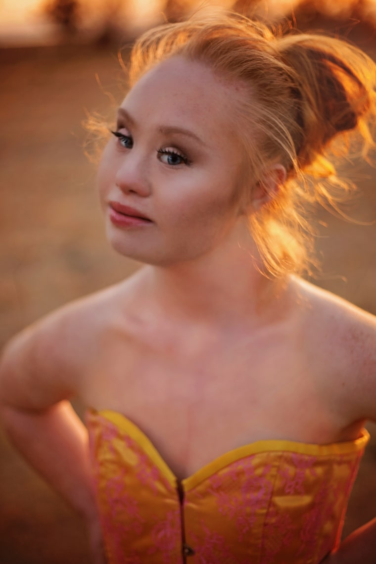 madeline stuart model with down syndrome reflects on her