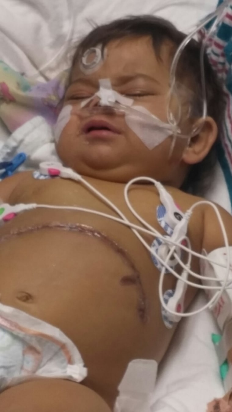 Natalia after the surgery.