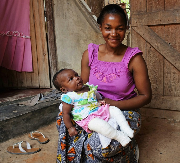 Mom with baby with clubfoot