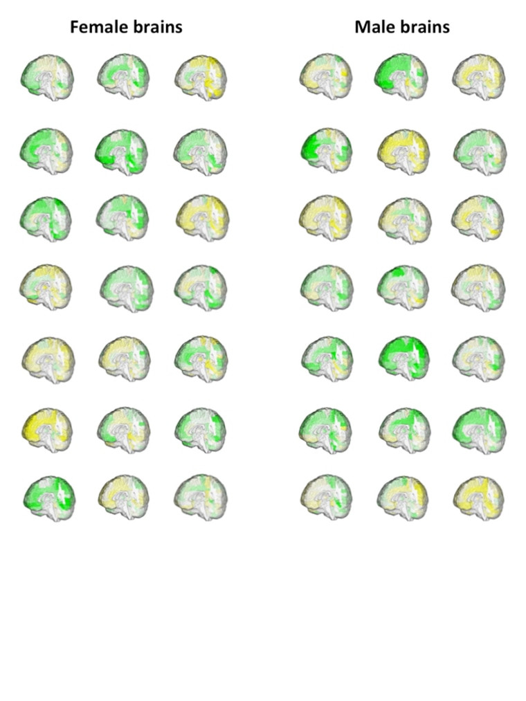 The volumes (green = large, yellow = small) of brain regions in 42 adults, showing the overlap between the forms that brains of females and brains of males can take.