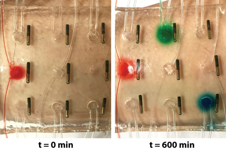 Image: a stretchy bandage that can deliver drugs and light up