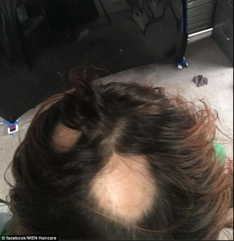 Class-Action Suit: Women have complained about the alleged effects of Wen by sharing photos of their bald spots on social media. The company is being sued by 200 consumers in a class action lawsuit that claims Wen made their hair fall out and damaged their scalps.