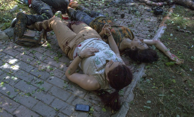 Image: Victims lay on the ground after an explosion rocked the Turkish city of Suruc
