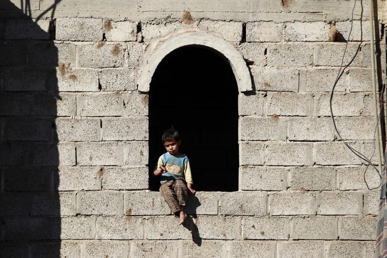 Image: TOPSHOT-YEMEN-CONFLICT-CHILDREN