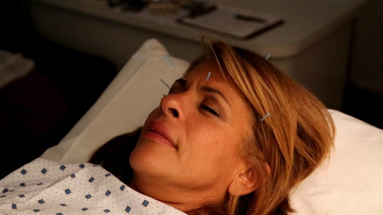 NBC's Hoda Kotb tries acupuncture.