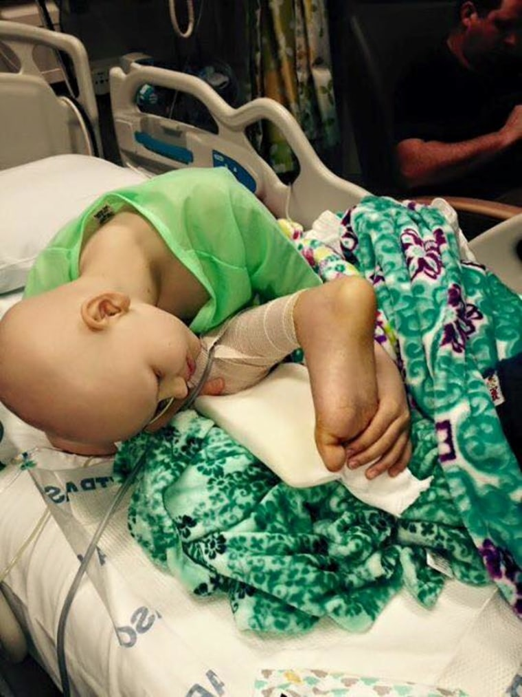 Haley Stol bends over her new limb to examine her foot, which was reattached backwards to her leg in a rare surgery called rotationplasty.