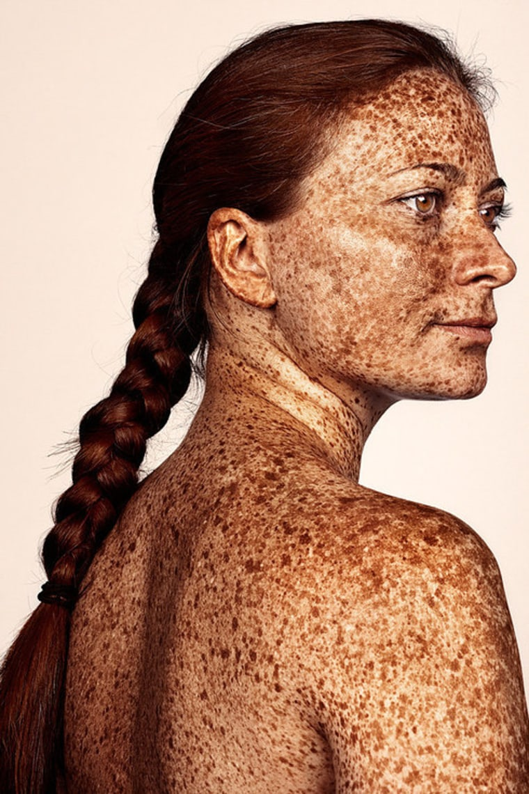 British photographer Brock Elbank has gone viral with his #Freckles series.