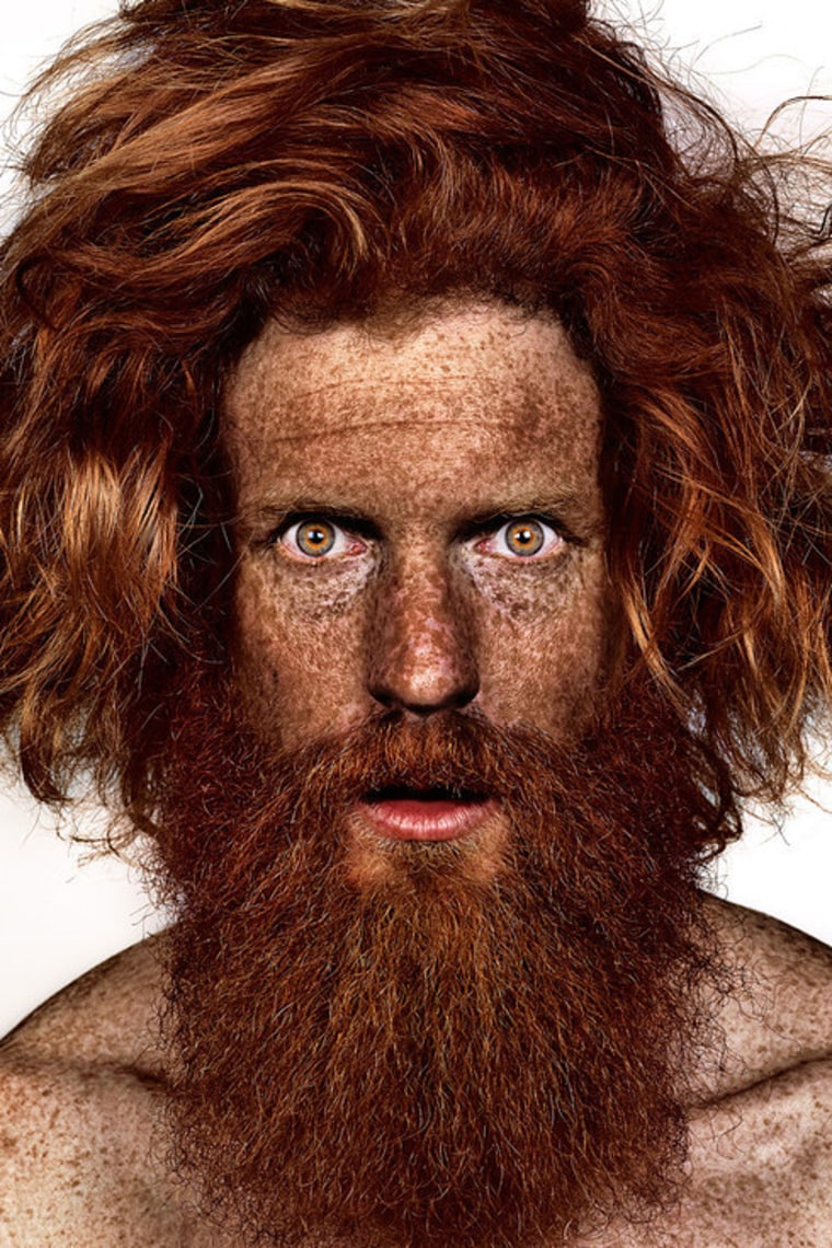 Sean Conway participates in photographer Brock Elbank's #Freckles series.