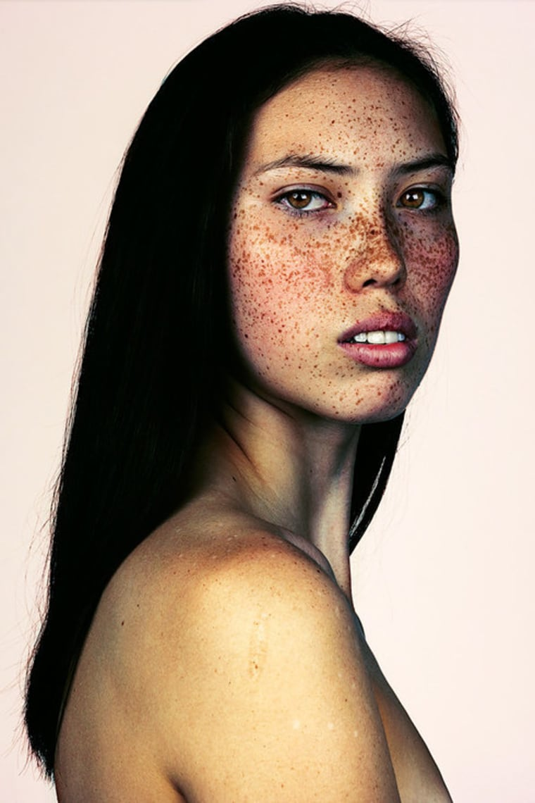 Tsiu-Kim, a model and singer, is featured in photographer Brock Elbank's #Freckles series.