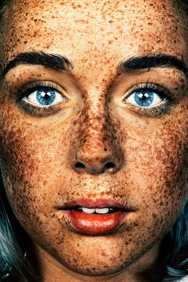 The #Freckles series began as a single image taken in 2012 by photographer Brock Elbank.